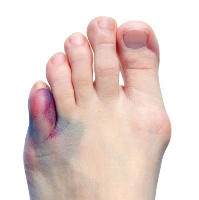 dolor en el dedo menique pie