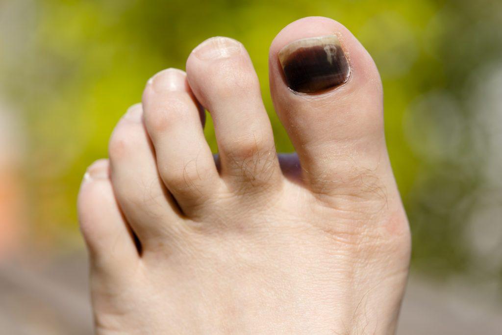 Porque se hacen moretones en las unas de los pies