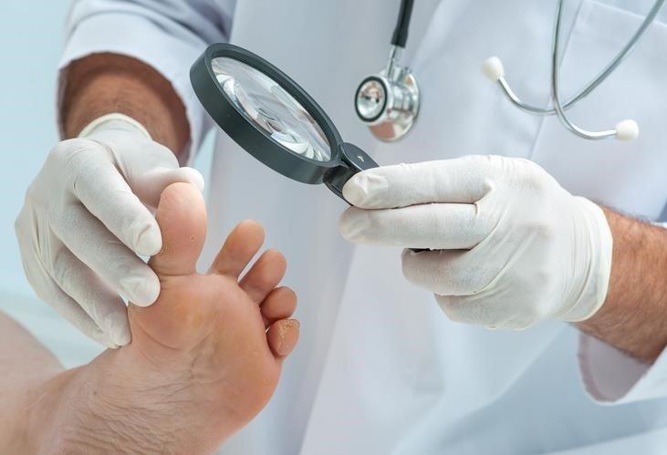 ojo de gallito linear unit dedo meñique del pie
