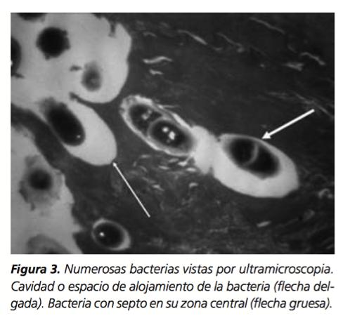 Imagen. García Cuadros GR., et al. Queratolisis punctata emergente en los Andes Cusco-Perú. Med Cutan Iber Lat Am 2006;34(5):223-228